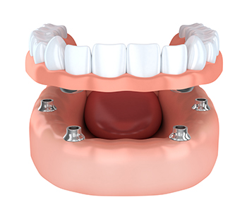 Dentures Nashua with stable, comfortable modern dentures