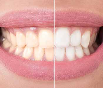 Randall G. Viola, D.D.S. Achieve dramatic results with in-office teeth whitening in Nashua