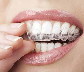 Randall G. Viola, D.D.S. Nashua, New Hampshire dentist explains the process of Invisalign treatment