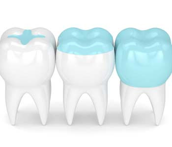 Randall G. Viola, D.D.S. Nashua NH dentist offers inlays and onlays in a single visit