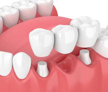 When is a Dental Bridge a Good Option in Nashua area