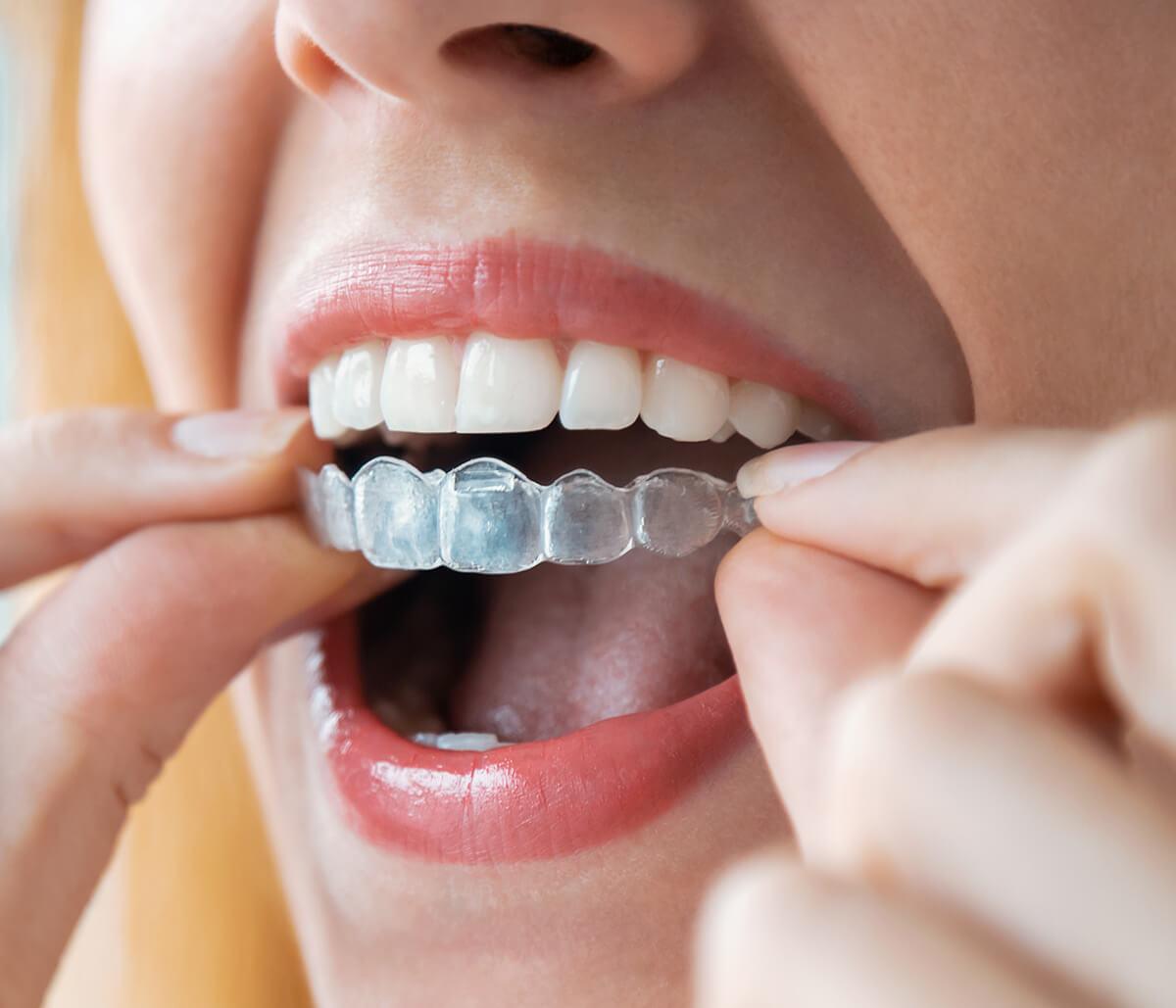 Invisible Teeth Aligners at Nashua Cosmetic & Restorative Dentistry in Nashua NH Area