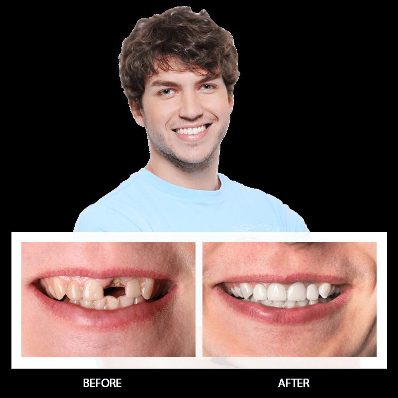 Dental Bridges Before and After