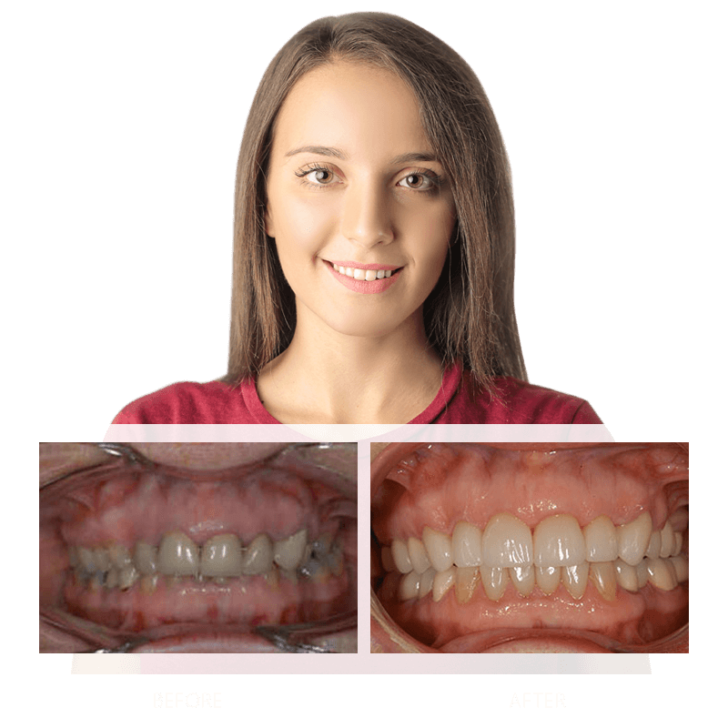 Full Mouth Reconstruction Nashua NH