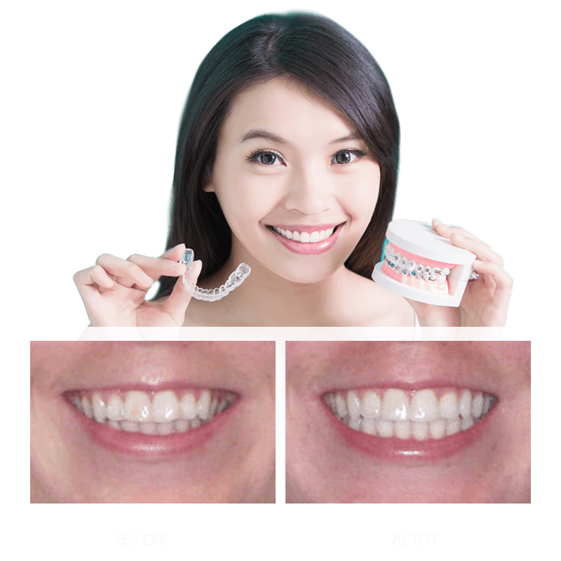 Invisalign® Before and After