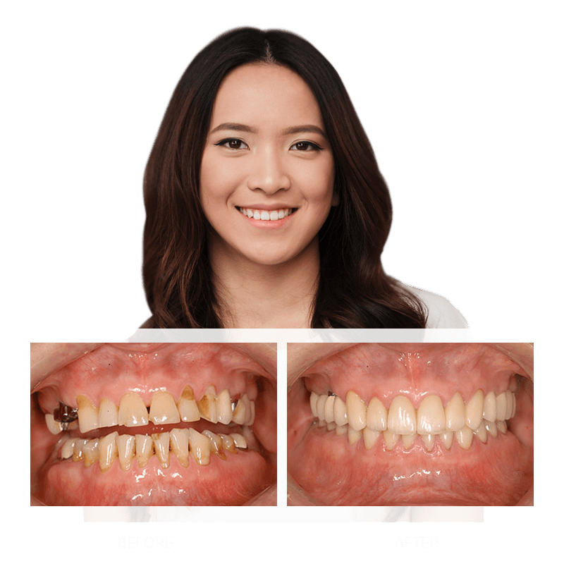 Restorative Dentistry Before and After