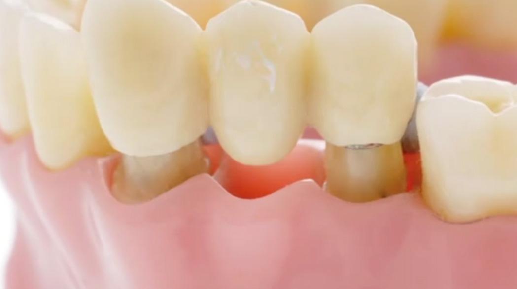 Dental bridges let you smile with confidence
