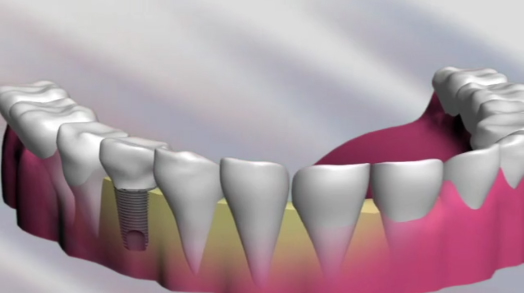 Replacing teeth and restoring smiles with dental implants