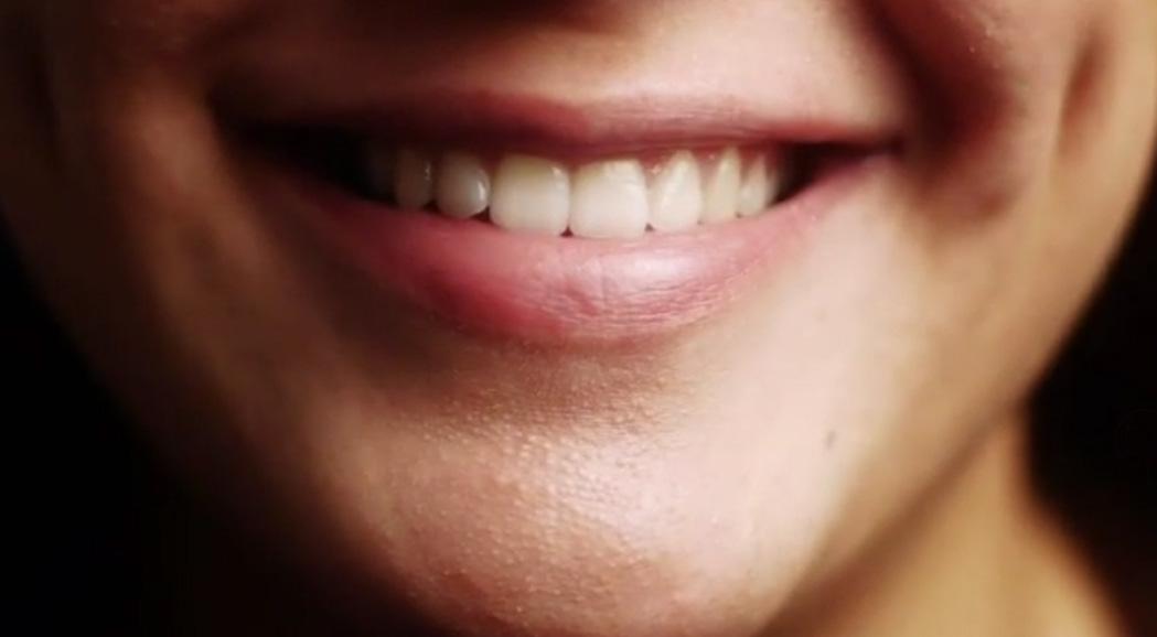 Whitening options for stunning smiles