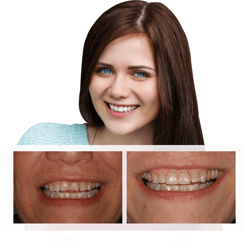 Dental crowns support a stunning smile